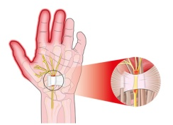 Double Crush and Carpal Tunnel Syndrome (CTS)